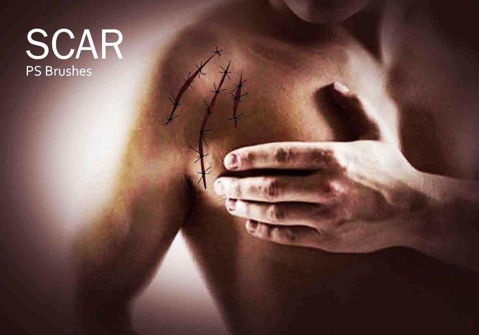 刀疤、疤痕、伤口纹理PS笔刷下载